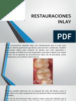 RESTAURACIONES INLAY [Autoguardado].pptx