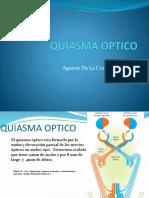 QUIASMA OPTICO.pptx