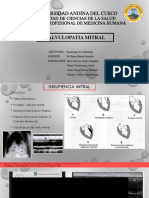 Valvulopatia mitral.pptx