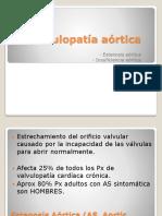 Valvulopatía aórtica