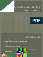 Clasificación de las hipoacusias