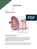 Insuficiencia renal agud1