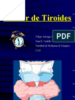 Tumores Malignos de La Glandula Tiroides1.