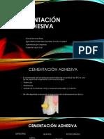 CEMENTACIÓN ADHESIVA1