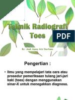 Teknik Radiografi Toes