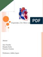 Isquemia Do Miocardio.pptx