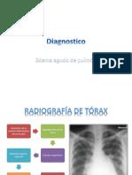 edema agudo de pulmon
