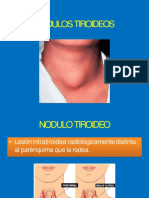 nodulos tiroideos-convertido