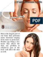 Different Types of Laser Treatments for Skin