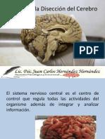 La_diseccion_del_Cerebro (1)