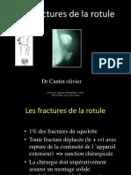 DIU-GENOU-2016-FRACTURE-DE-LA-ROTULE-CANTIN