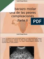 Isabel Rangel Barón - Embarazo Molar, Una de Las Peores Complicaciones, Parte II