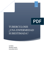 TUBERCULOSIS Arianna Valdez - Guillermo Reyes