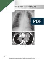 chest radio 8 widening of the mediastinum
