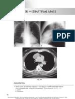 chest radio 9 anterior mediastinal mass