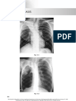 chest radio 13 atelectasis