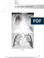 chest radio 15 diffuse air space opacities