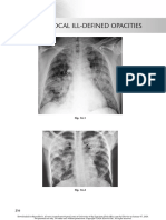 chest radio 16 multifocal ill defined opacities