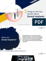 5 Things to Ask Your Dentist About Dental Implants