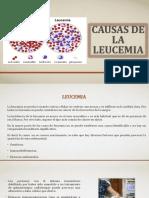 Causas de la leucemia
