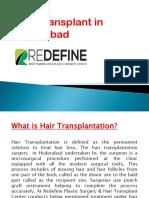Hair Transplant in Hyderabad | Hair Transplantation Cost Hyderabad