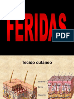 FERIDAS
