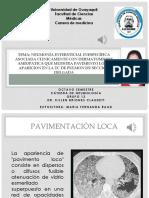 NEUMONIA INTERSTICIAL ASOCIADA CON PAVIMENTO LOCO