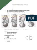 2. Nasterea in prezentatie craniana sau cefalica