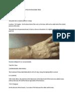 Lipid profile and vertigo master treatments