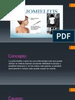 poliomielitis[1].pptx