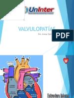 SIND VALVULARES