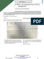 Brugada Pattern ECG
