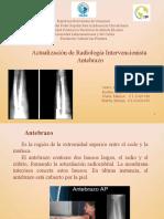 Presentación1 ANTEBRAZO-Editada.pptx