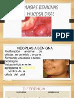 NEOPLASIAS MALIGNAS EN CAVIDAD ORAL-convertido.pptx