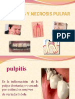 Pulpitis y Necrosis Pulpar
