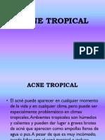 ACNE TROPICAL
