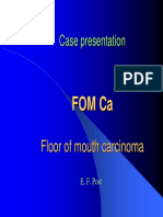 Floor of mouth Ca