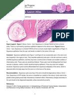 Uterus Cervix Cyst Squamous PDF 508