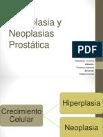 Hiperplasia y Neoplasias Prostática