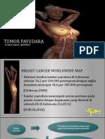 TUMOR PAYUDARA.pptx