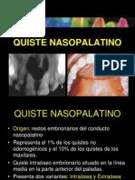 cdocumentsandsettingsmilushkaescritorioquistenasopalatino-090503121135-phpapp02