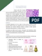 Carcinoma Embrionario