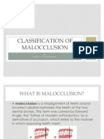 Classification of Malloclusion1