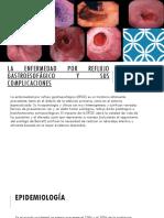 La enfermedad por reflujo gastroesofágico y sus complicaciones.pptx · versión 1