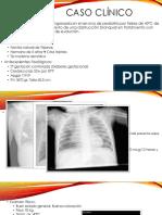 Bronquiolitis obliterante en la edad pediátrica