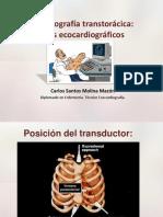 planos_ecocardiograficos