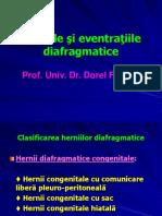 118963866-herniile.ppt