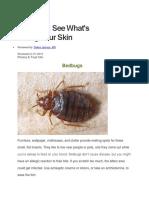 Parasites (35p)