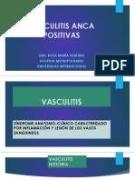 VASCULITIS ANCA POSITIVAS