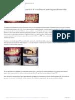 Aumentos-de-la-dimensión-vertical-de-oclusión-con-prótesis-parcial-removible-(Dr.Ernest-Mallat)